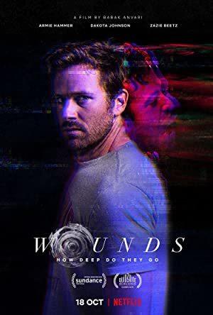 Wounds online sa prevodom